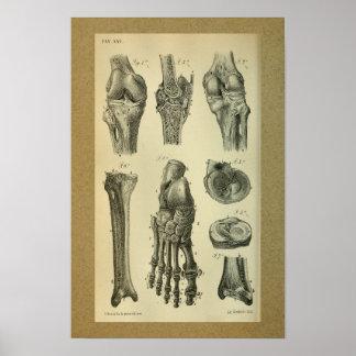 1850 Vintage Anatomy Print Foot Knee