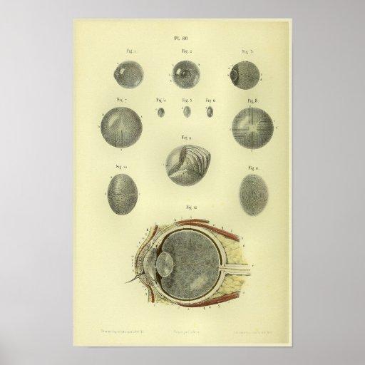 1866 Human Eye Cornea Anatomy Print