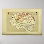 1886 Vintage Human Brain Anatomy Print