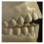 A dental model