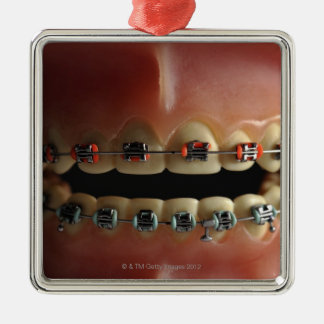 A dental model and Teeth braces Christmas Ornament