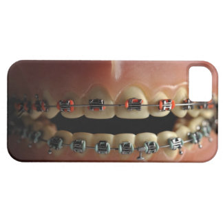 A dental model and Teeth braces iPhone 5 Case