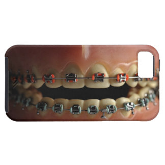 A dental model and Teeth braces Tough iPhone 5 Case