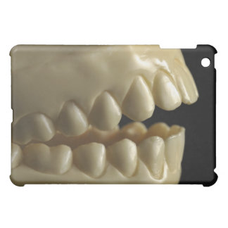 A dental model cover for the iPad mini
