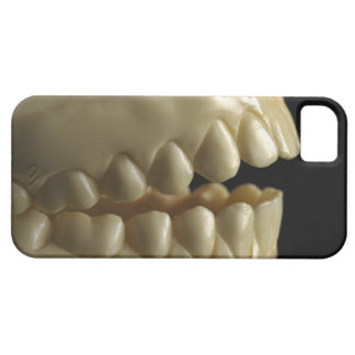 A dental model iPhone 5 case