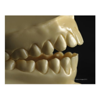 A dental model post card