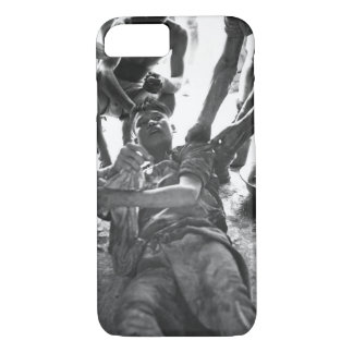 A wounded Vietminh _ War Image iPhone 7 Case