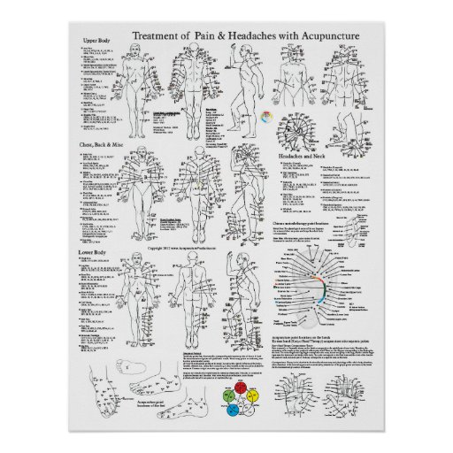 Acupuncture Treatment of Pain and Headaches Print
