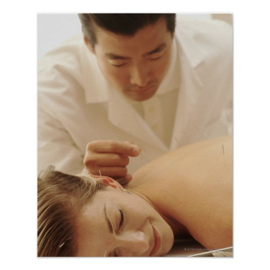 Acupuncturist putting needles in woman's back poster