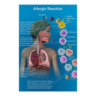 Allergic Reaction poster