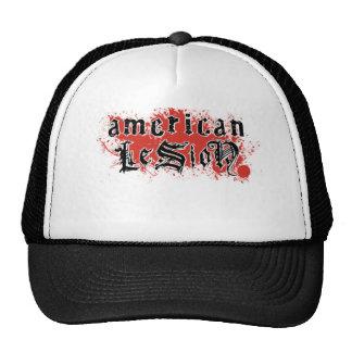American Lesion -Blood splatter Hat