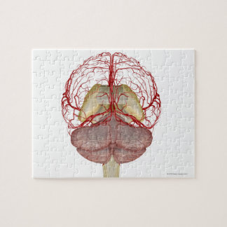 Arteries of the Brain 2 Jigsaw Puzzle