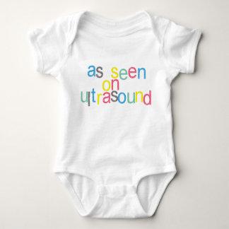 As Seen on Ultrasound Baby Bodysuit