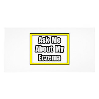 Ask Me About My Eczema Photo Cards