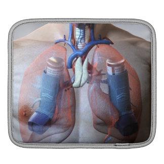 Asthma iPad Sleeve