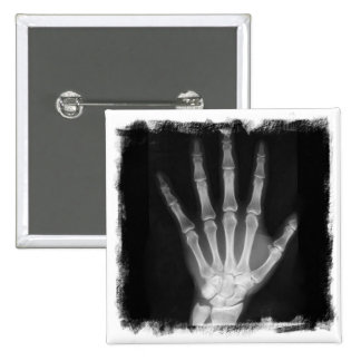 B&W X-ray Skeleton Hand 15 Cm Square Badge