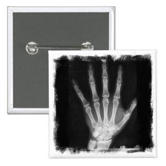 B&W X-ray Skeleton Hand 15 Cm Square Badge