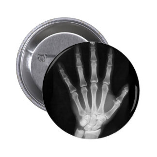 B&W X-ray Skeleton Hand 6 Cm Round Badge
