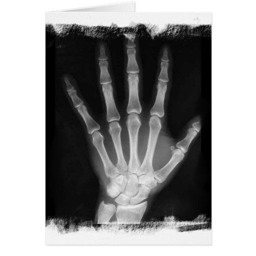 B&W X-ray Skeleton Hand Greeting Cards