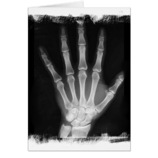 B&W X-ray Skeleton Hand Greeting Card