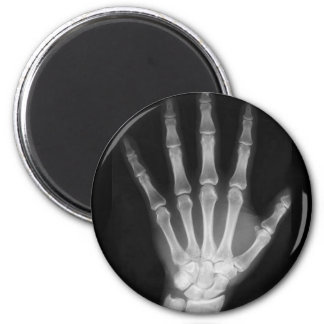 B&W X-ray Skeleton Hand Magnets