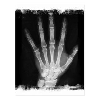 B&W X-ray Skeleton Hand Postcard