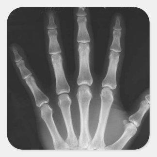 B&W X-ray Skeleton Hand Square Sticker