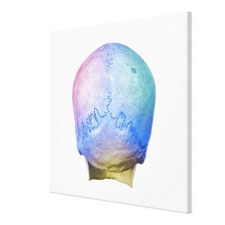 Back of Human Skull Canvas Print