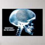 Basketball Head (X-ray) Poster