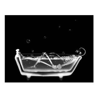 Bath Tub X-Ray Skeleton Black White Postcard