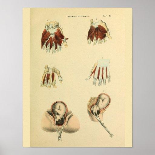 Birth Forceps Obstetrics Anatomy Medical Art Print