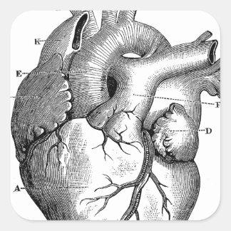 Black Anatomical Heart Square Sticker