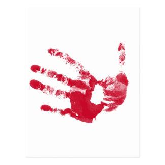Bloody Hand Postcard