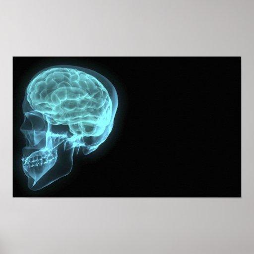 Blue Neon Side View X-ray Skull on Black Print