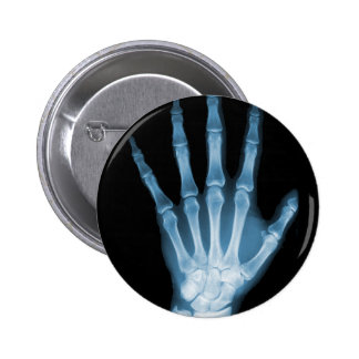 Blue X-ray Skeleton Hand 6 Cm Round Badge