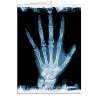 Blue X-ray Skeleton Hand Card