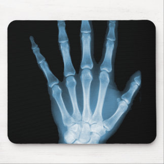 Blue X-ray Skeleton Hand Mousepad