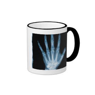 Blue X-ray Skeleton Hand Mug