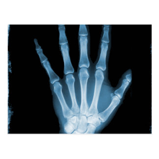 Blue X-ray Skeleton Hand Postcard