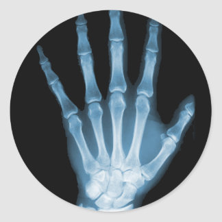 Blue X-ray Skeleton Hand Round Sticker