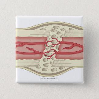 Bone Repairing Itself 2 15 Cm Square Badge