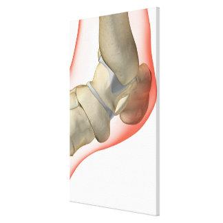 Bones of the Foot 2 Canvas Print