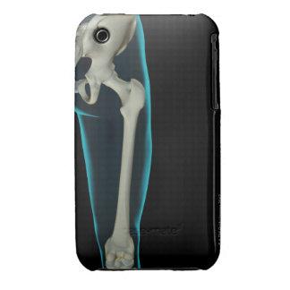 Bones of the Hip 3 iPhone 3 Cases