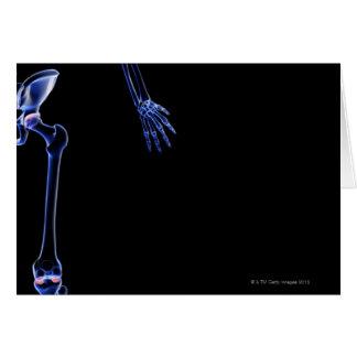 Bones of the Hip Card