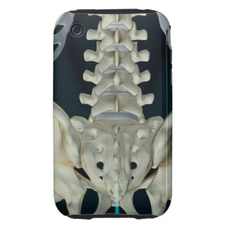 Bones of the Lower Back iPhone 3 Tough Cases