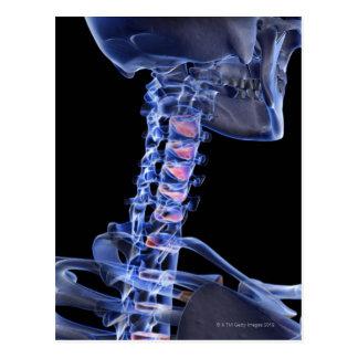 Bones of the Neck 3 Postcard