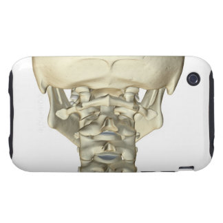 Bones of the Neck 4 iPhone 3 Tough Case