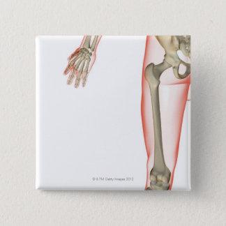 Bones of the Thigh 15 Cm Square Badge