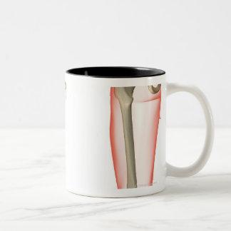 Bones of the Thigh Mug