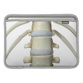 Bones of the Vertebral Column Sleeve For MacBook Air